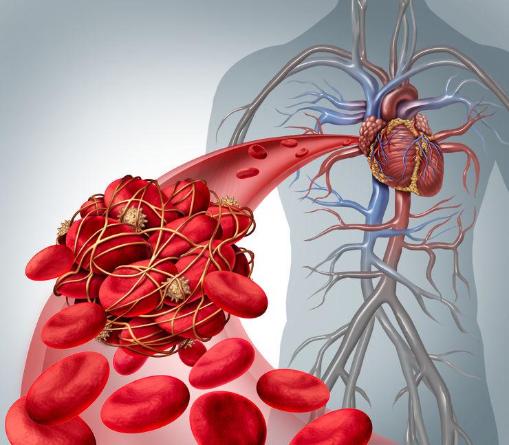 antiplatelet anticoagulant drugs ptcb